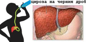 цироза